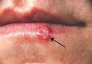 herpes på munden